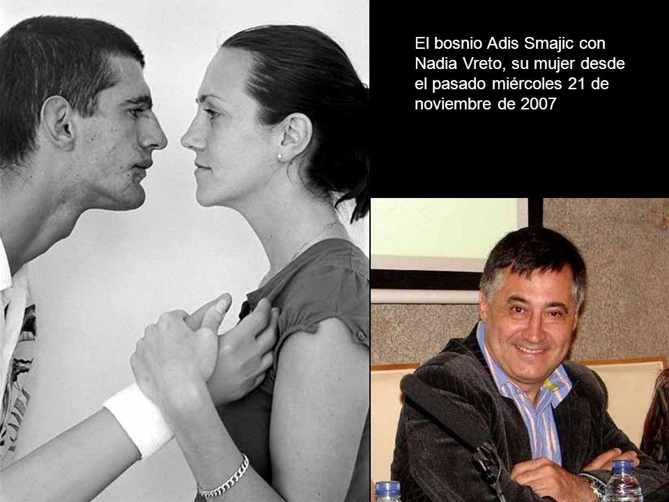 El bosnio Adis Smajic en una operación de cirugía estética en la clínica Quirón de Barcelona en octubre 2004