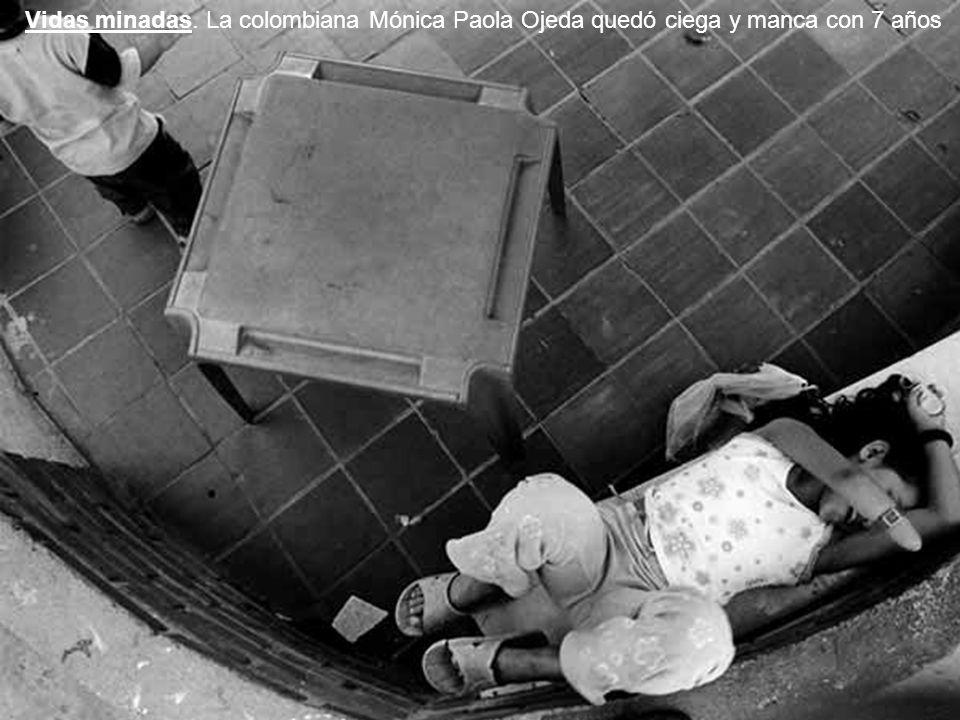 http://www.soitu.es/soitu/2008/05/09/actualidad/1210338955_162064.html http://www.afrol.com/es/articles/14698 http://www.elpais.com/articulo/sociedad/Solo/documento/tragedias/elpepisoc/20080405elpepisoc_7/Tes http://actualidad.terra.es/sociedad/articulo/gervasio_sanchez_lente_captura_coraje_2059226.htm http://www.elmundo.es/elmundo/2008/02/14/barcelona/1202992831.html http://www.quesabesde.com/noticias/gervasio-sanchez-sierra-leona-vitrina-fotograf,1_3731 http://www.rosajc.com/2008/05/09/el-valiente-discurso-de-gervasio-sanchez/ http://dinoalasbombasderacimo.com/ http://dinoalasbombasderacimo.com/?p=68 http://www.cadenaser.com/espana/audios/entrevista-gervasio-sanchez-ventana-bombas/csrcsrpor/20080529csrcsrnac_3/Aes/ http://www.elpais.com/fotogaleria/Vidas/minadas/anos/4694-4/elpgal/