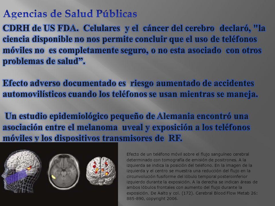 Efecto de un teléfono móvil sobre el flujo sanguíneo cerebral determinado con tomografía de emisión de positrones.