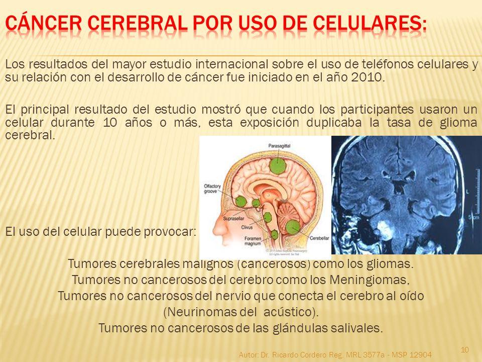 Los resultados del mayor estudio internacional sobre el uso de teléfonos celulares y su relación con el desarrollo de cáncer fue iniciado en el año 20