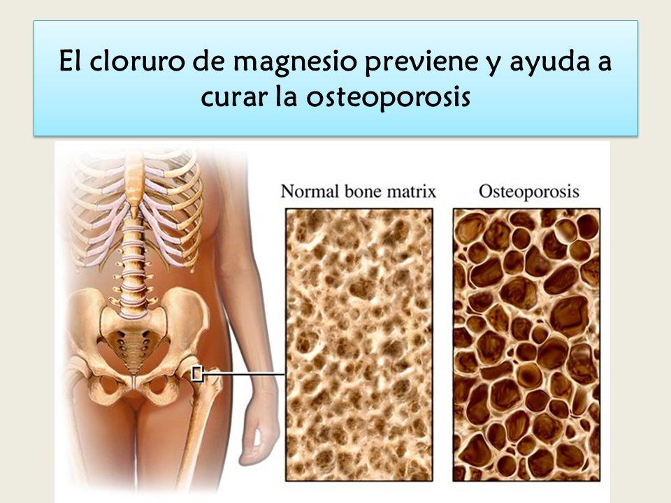 SISTEMA CARDIOVASCULAR Y MAGNESIO El magnesio baja la presión arterial. Esto está avalado por 15 estudios. La deficiencia de magnesio aumenta la angio