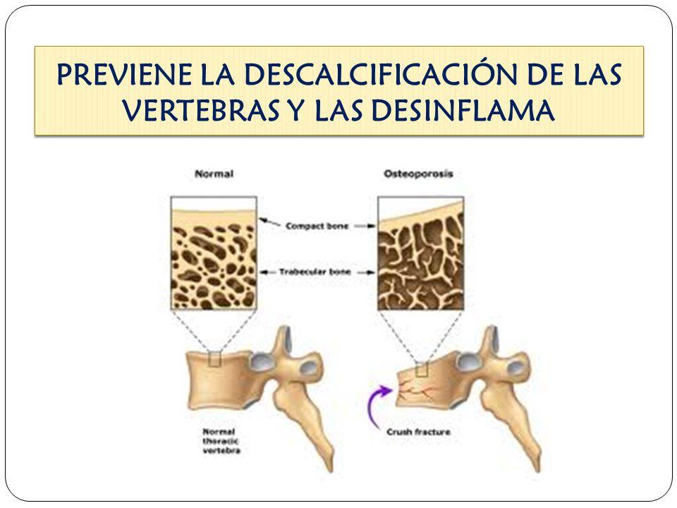 El cloruro de magnesio previene y ayuda a curar la osteoporosis