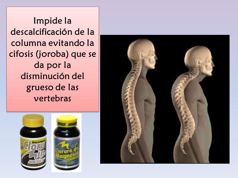 Impide la descalcificación de la columna evitando la cifosis (joroba) que se da por la disminución del grueso de las vertebras