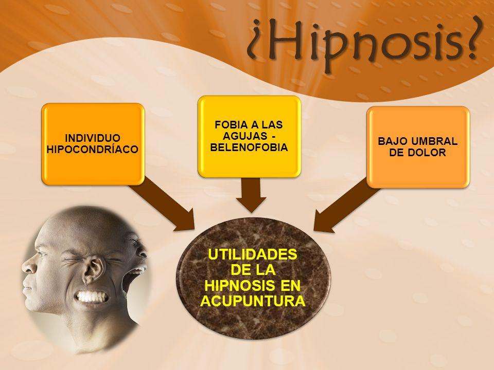 ¿Hipnosis ? UTILIDADES DE LA HIPNOSIS EN ACUPUNTURA INDIVIDUO HIPOCONDRÍACO FOBIA A LAS AGUJAS - BELENOFOBIA BAJO UMBRAL DE DOLOR