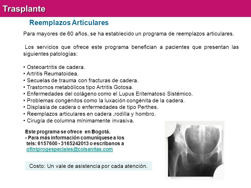 Reemplazos ArticularesTrasplante Para mayores de 60 años, se ha establecido un programa de reemplazos articulares.