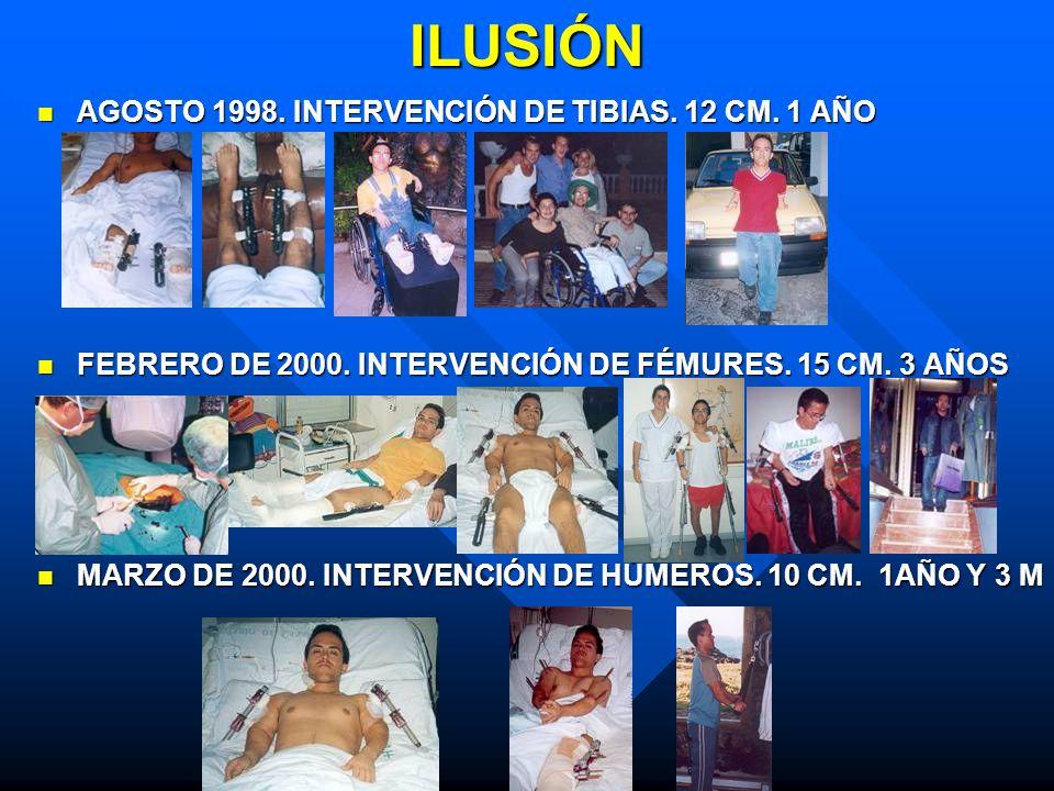 ILUSIÓN AGOSTO 1998. INTERVENCIÓN DE TIBIAS. 12 CM. 1 AÑO AGOSTO 1998. INTERVENCIÓN DE TIBIAS. 12 CM. 1 AÑO FEBRERO DE 2000. INTERVENCIÓN DE FÉMURES.