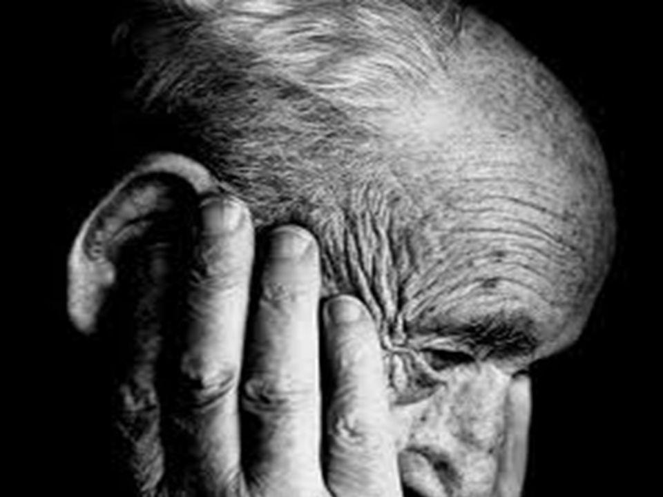 Alzheimer A.Déficit Cognitivo. Memoria.