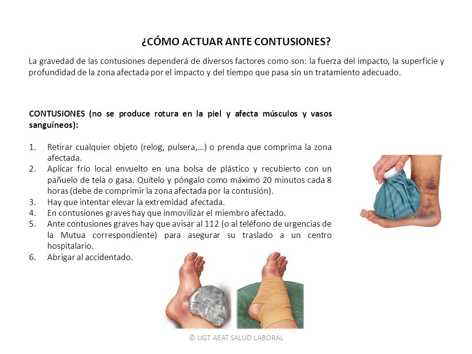 © UGT AEAT SALUD LABORAL CONTUSIONES (no se produce rotura en la piel y afecta músculos y vasos sanguíneos): 1.Retirar cualquier objeto (relog, pulser