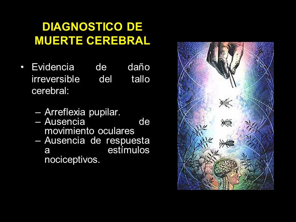 DIAGNÓSTICO DE MUERTE CEREBRAL Pérdida permanente e irreversible de conciencia y de respuesta a estímulos sensoriales.
