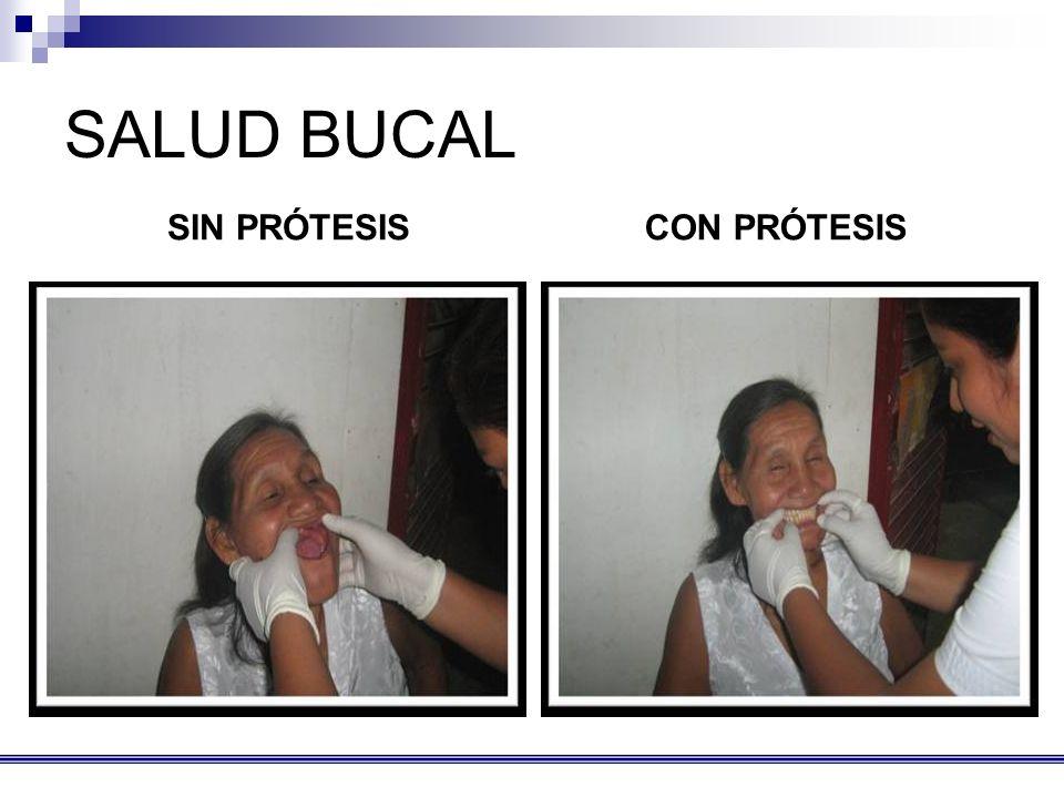SALUD BUCAL SIN PRÓTESISCON PRÓTESIS