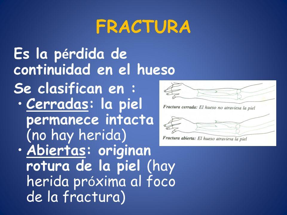 FRACTURA Es la p é rdida de continuidad en el hueso Se clasifican en : Cerradas: la piel permanece intacta (no hay herida) Abiertas: originan rotura d