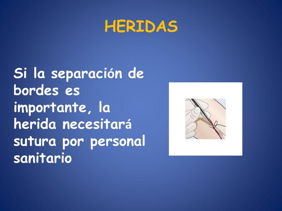 HERIDAS Si la separaci ó n de bordes es importante, la herida necesitar á sutura por personal sanitario