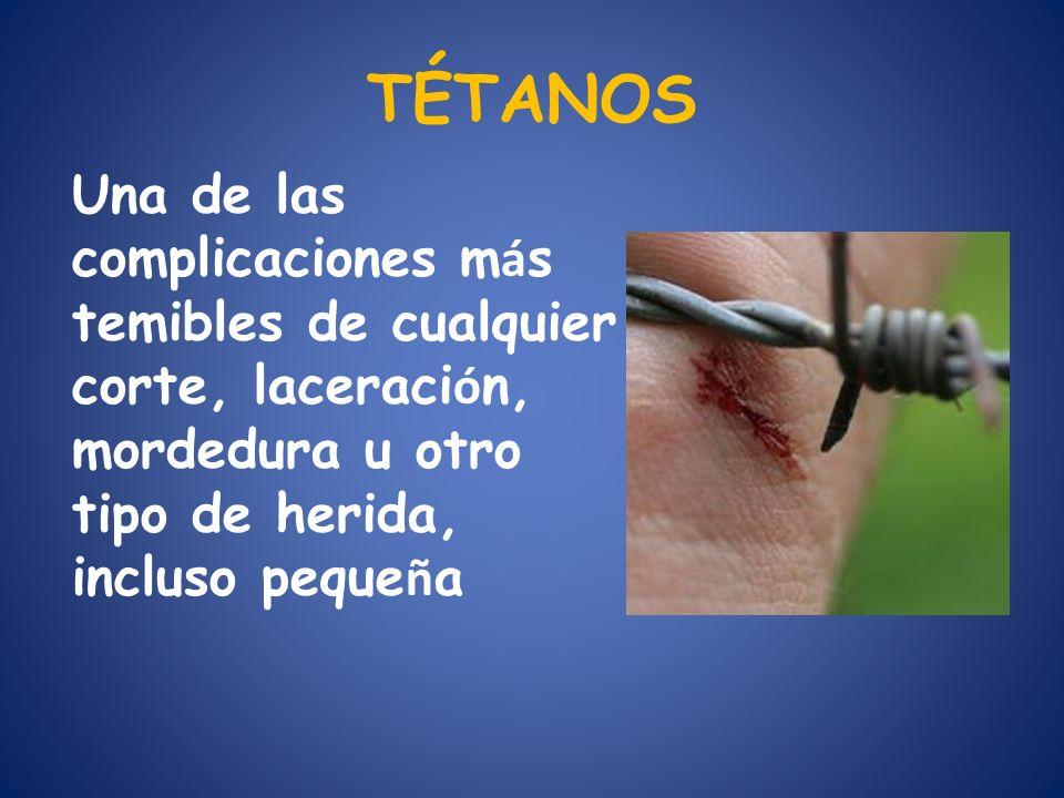 TÉTANOS Una de las complicaciones m á s temibles de cualquier corte, laceraci ó n, mordedura u otro tipo de herida, incluso peque ñ a