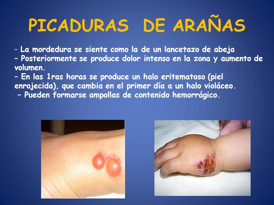 PICADURAS DE ARAÑAS – La mordedura se siente como la de un lancetazo de abeja – Posteriormente se produce dolor intenso en la zona y aumento de volume