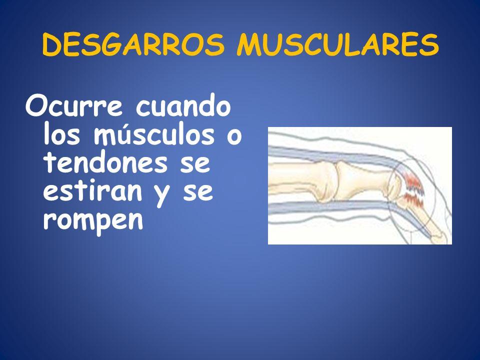 DESGARROS MUSCULARES Ocurre cuando los m ú sculos o tendones se estiran y se rompen