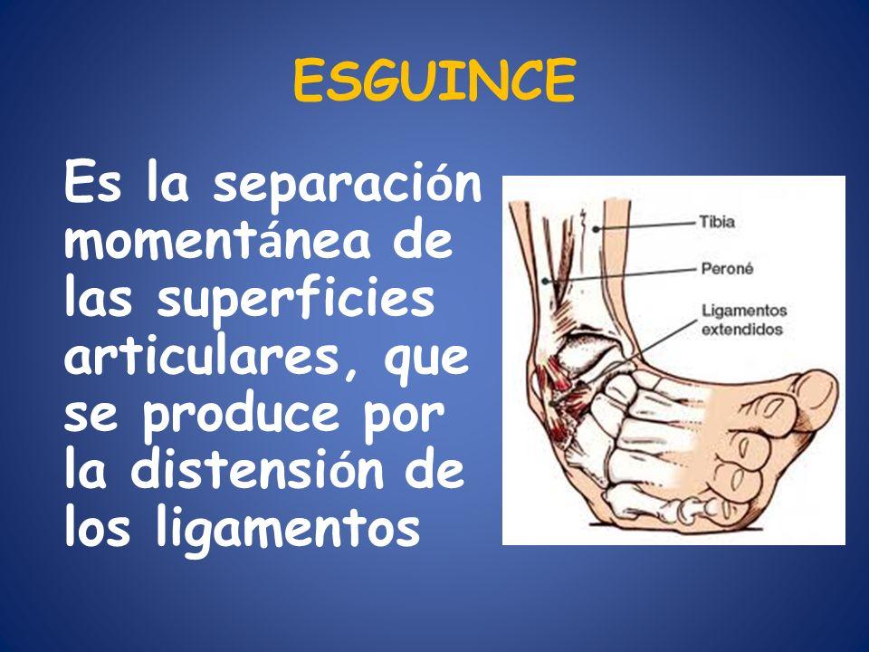 ESGUINCE Es la separaci ó n moment á nea de las superficies articulares, que se produce por la distensi ó n de los ligamentos