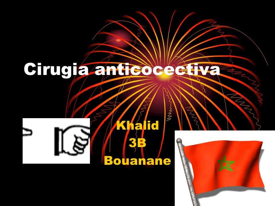 Cirugia anticocectiva Khalid 3B Bouanane