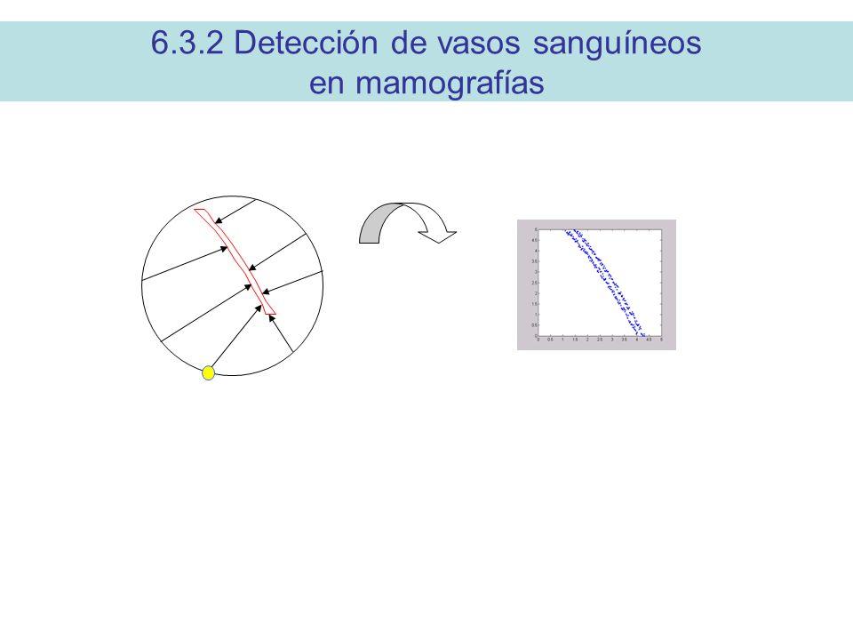 6.3.2 Detección de vasos sanguíneos en mamografías