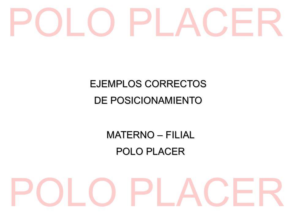EJEMPLOS CORRECTOS DE POSICIONAMIENTO MATERNO – FILIAL POLO PLACER
