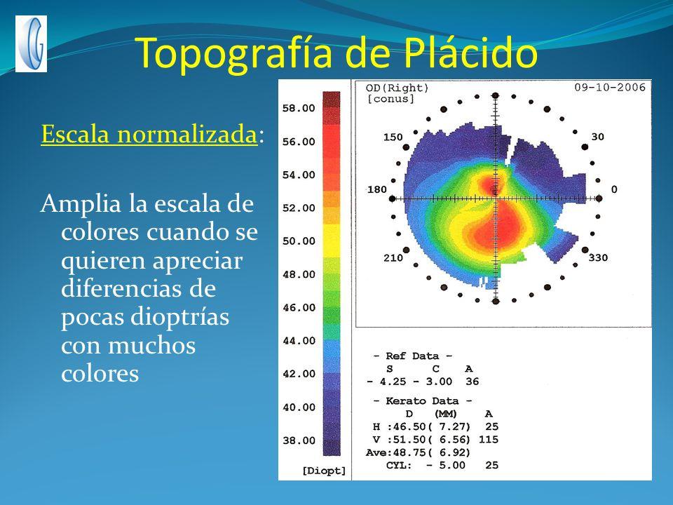 Topografía de Plácido Escala normalizada: Amplia la escala de colores cuando se quieren apreciar diferencias de pocas dioptrías con muchos colores