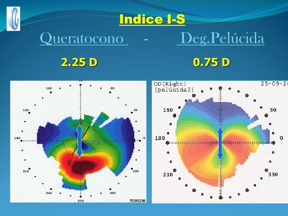 Indice I-S Queratocono - Deg.Pelúcida 2.25 D 0.75 D