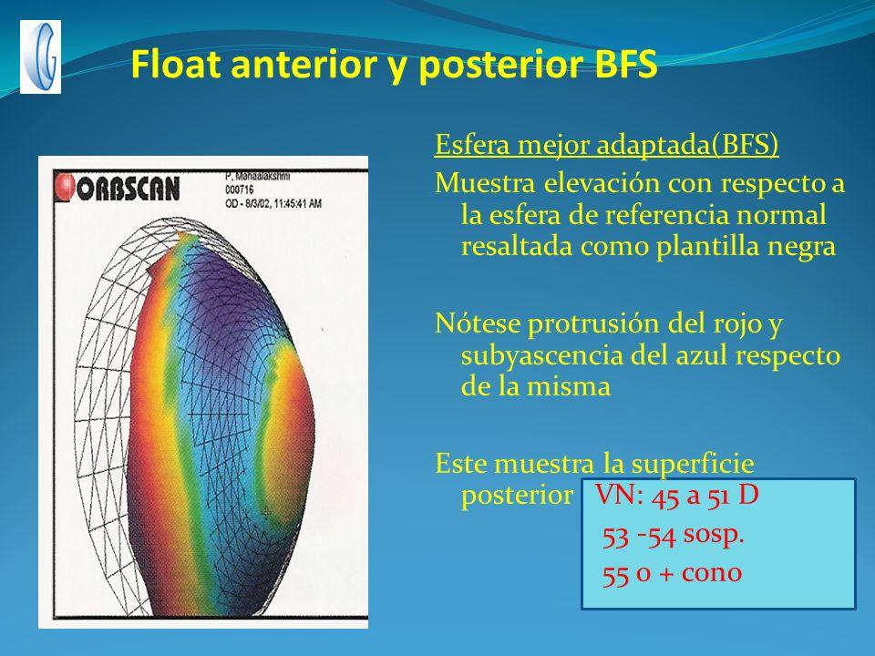 Float anterior y posterior BFS Esfera mejor adaptada(BFS) Muestra elevación con respecto a la esfera de referencia normal resaltada como plantilla neg