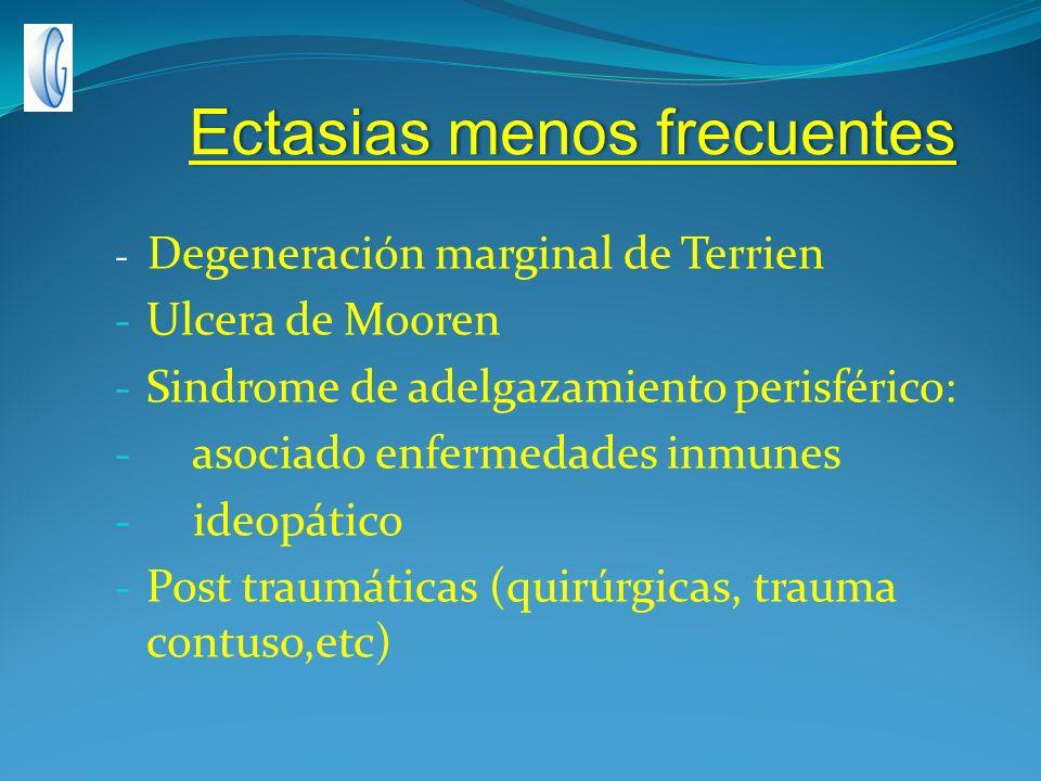 Ectasias menos frecuentesEctasias menos frecuentes - Degeneración marginal de Terrien - Ulcera de Mooren - Sindrome de adelgazamiento perisférico: - a
