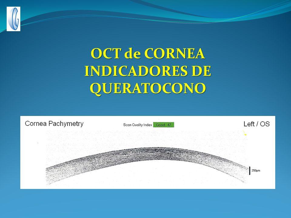 OCT de CORNEA INDICADORES DE QUERATOCONO