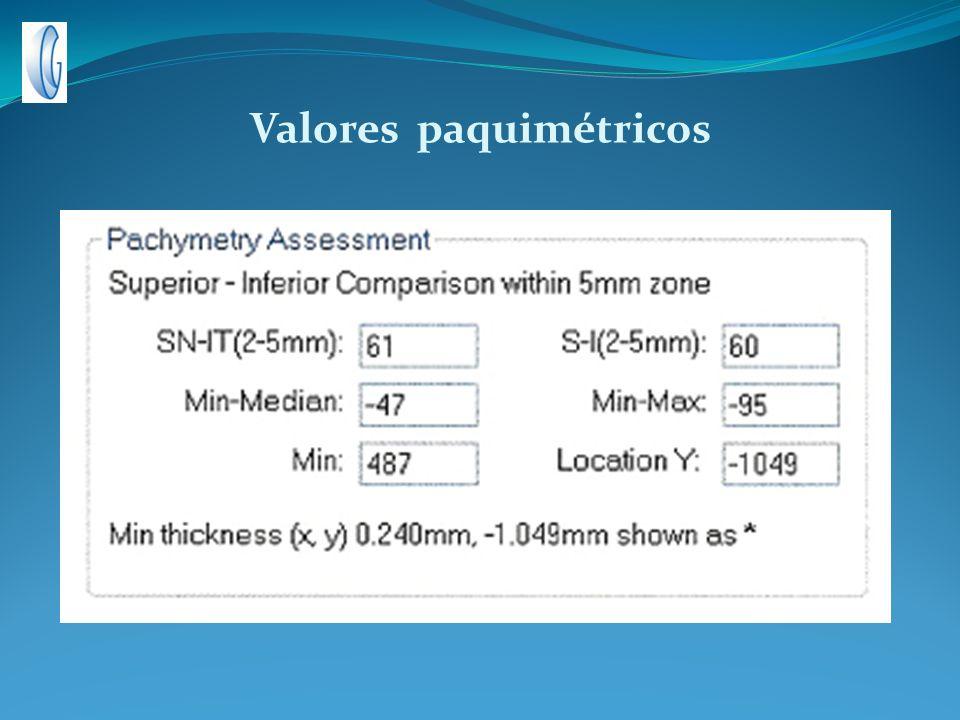 Valores paquimétricos