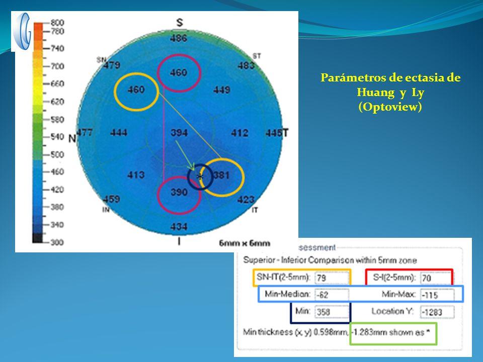 Parámetros de ectasia de Huang y Ly (Optoview)