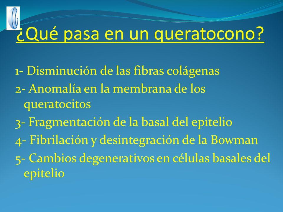 ¿Qué pasa en un queratocono? 1- Disminución de las fibras colágenas 2- Anomalía en la membrana de los queratocitos 3- Fragmentación de la basal del ep