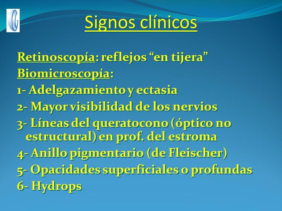 Signos clínicos Retinoscopía: reflejos en tijera Biomicroscopía: 1- Adelgazamiento y ectasia 2- Mayor visibilidad de los nervios 3- Líneas del querato