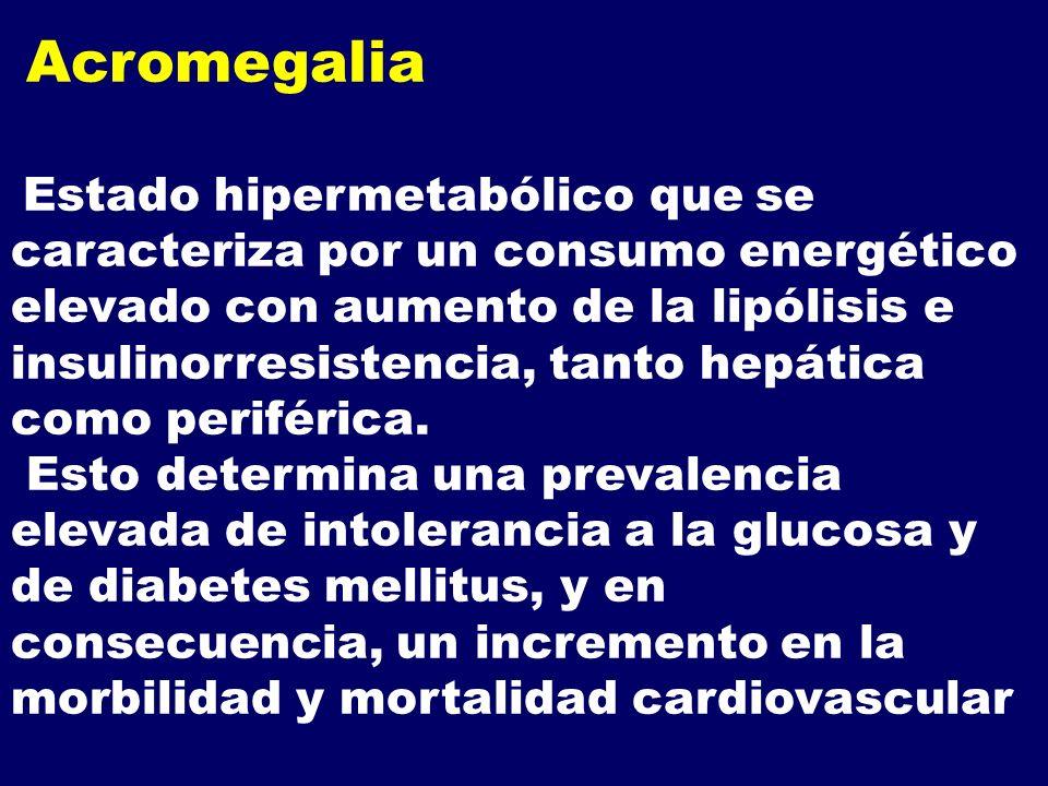 Acromegalia Estado hipermetabólico que se caracteriza por un consumo energético elevado con aumento de la lipólisis e insulinorresistencia, tanto hepá