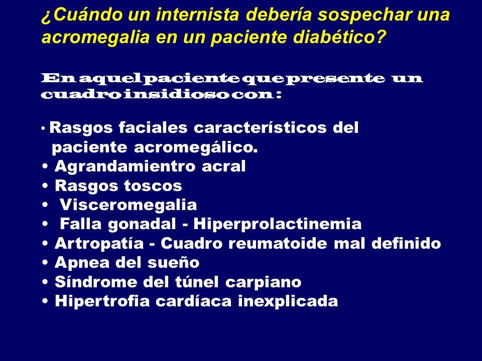 ¿Cuándo un internista debería sospechar una acromegalia en un paciente diabético? En aquel paciente que presente un cuadro insidioso con : Rasgos faci