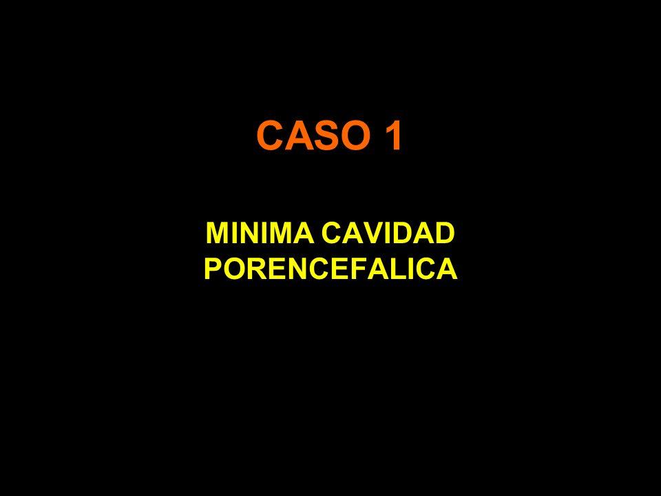 CASO 1 MINIMA CAVIDAD PORENCEFALICA