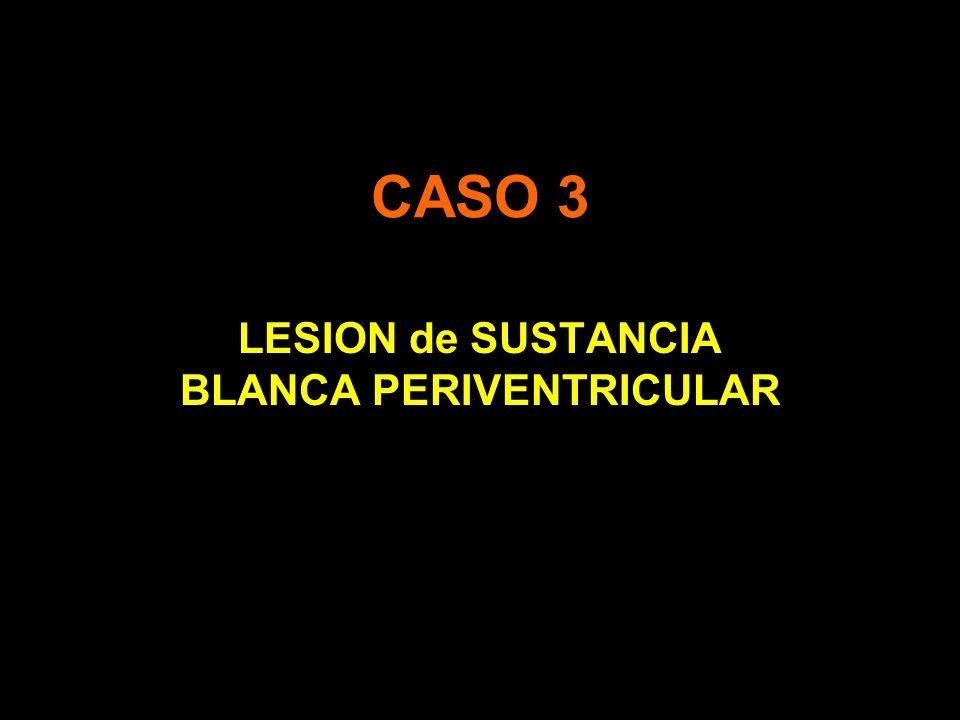 CASO 3 LESION de SUSTANCIA BLANCA PERIVENTRICULAR