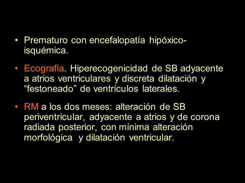 Prematuro con encefalopatía hipóxico- isquémica. Ecografía. Hiperecogenicidad de SB adyacente a atrios ventriculares y discreta dilatación y festonead