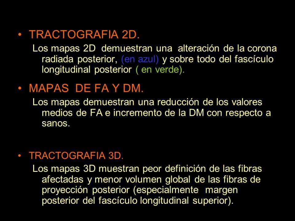 TRACTOGRAFIA 2D. Los mapas 2D demuestran una alteración de la corona radiada posterior, (en azul) y sobre todo del fascículo longitudinal posterior (
