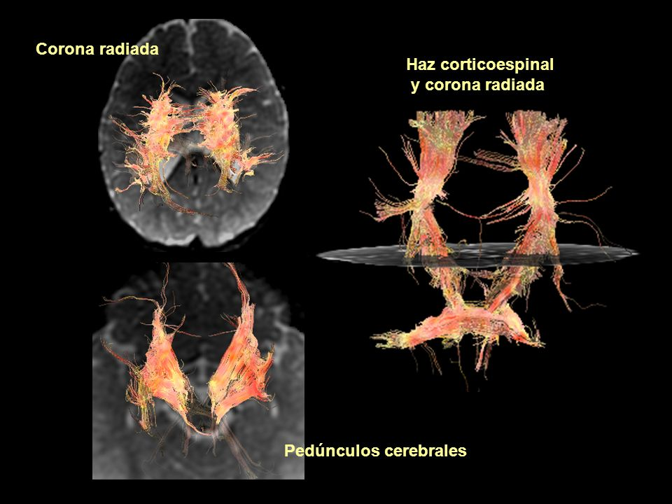 Haz corticoespinal y corona radiada Corona radiada Pedúnculos cerebrales