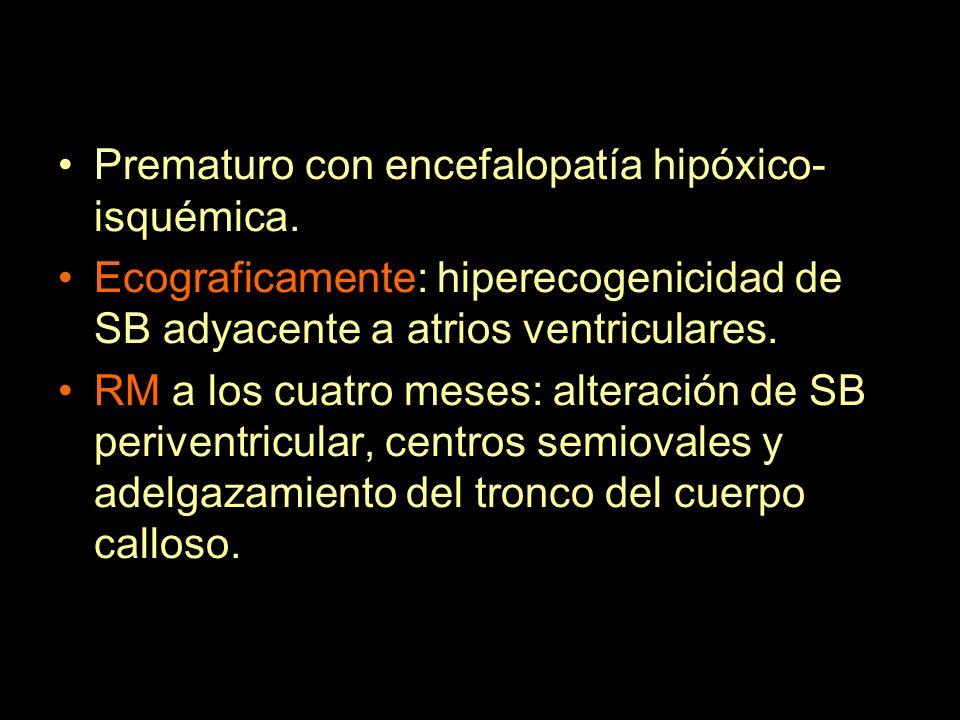 Prematuro con encefalopatía hipóxico- isquémica. Ecograficamente: hiperecogenicidad de SB adyacente a atrios ventriculares. RM a los cuatro meses: alt