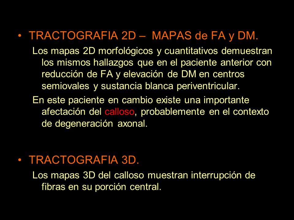 TRACTOGRAFIA 2D – MAPAS de FA y DM. Los mapas 2D morfológicos y cuantitativos demuestran los mismos hallazgos que en el paciente anterior con reducció