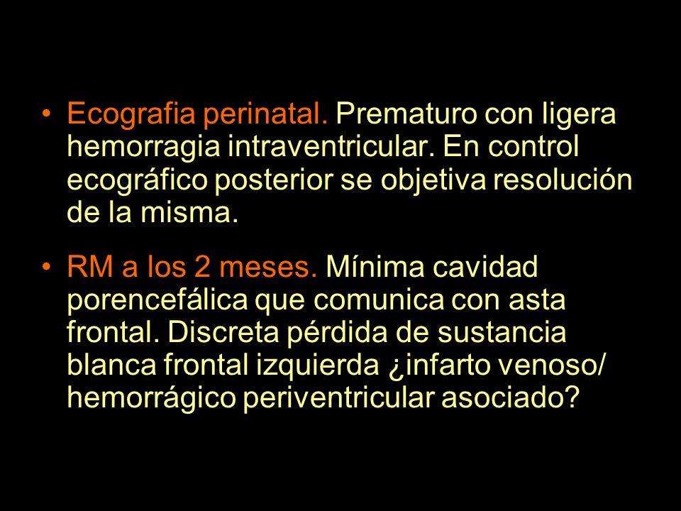 Ecografia perinatal. Prematuro con ligera hemorragia intraventricular. En control ecográfico posterior se objetiva resolución de la misma. RM a los 2