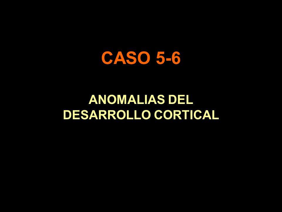 CASO 5-6 ANOMALIAS DEL DESARROLLO CORTICAL