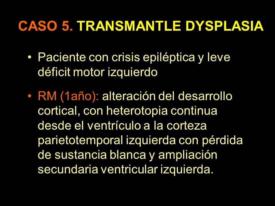CASO 5. TRANSMANTLE DYSPLASIA Paciente con crisis epiléptica y leve déficit motor izquierdo. RM (1año): alteración del desarrollo cortical, con hetero