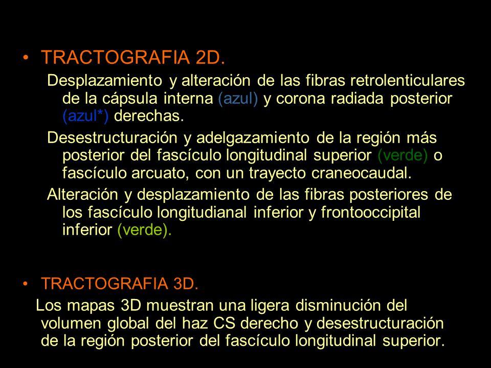 TRACTOGRAFIA 2D. Desplazamiento y alteración de las fibras retrolenticulares de la cápsula interna (azul) y corona radiada posterior (azul*) derechas.