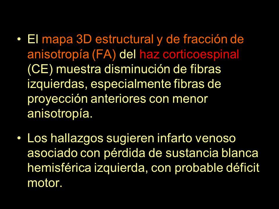 El mapa 3D estructural y de fracción de anisotropía (FA) del haz corticoespinal (CE) muestra disminución de fibras izquierdas, especialmente fibras de