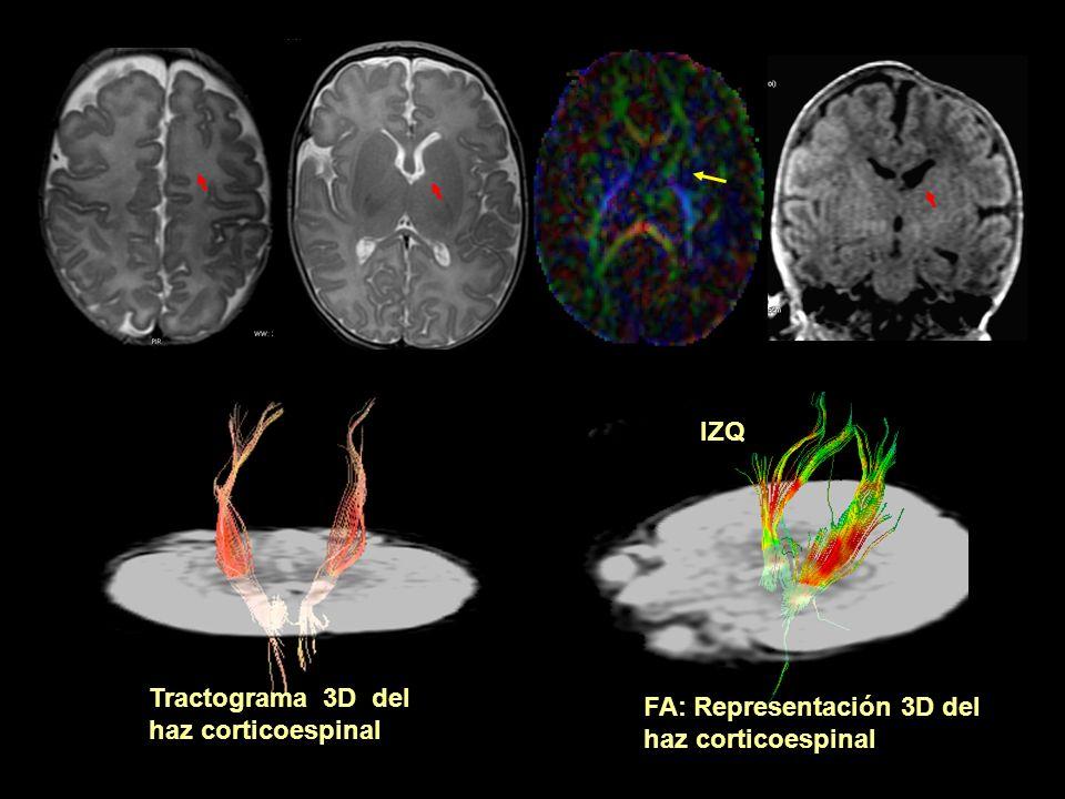 FA: Representación 3D del haz corticoespinal Tractograma 3D del haz corticoespinal IZQ