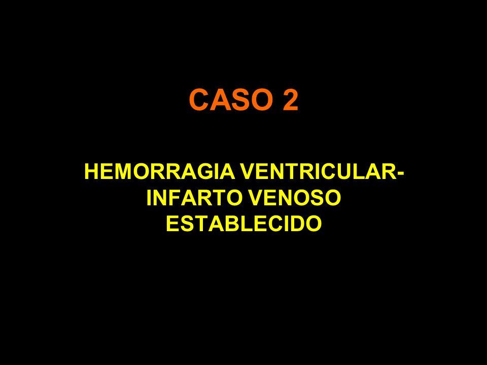 CASO 2 HEMORRAGIA VENTRICULAR- INFARTO VENOSO ESTABLECIDO