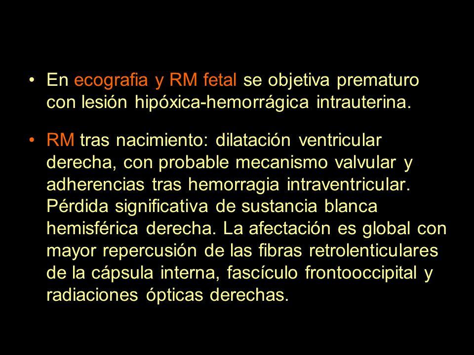 En ecografia y RM fetal se objetiva prematuro con lesión hipóxica-hemorrágica intrauterina. RM tras nacimiento: dilatación ventricular derecha, con pr