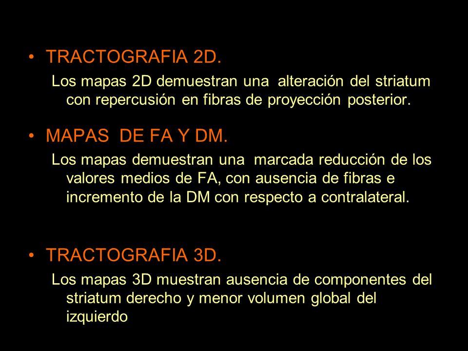 TRACTOGRAFIA 2D. Los mapas 2D demuestran una alteración del striatum con repercusión en fibras de proyección posterior. MAPAS DE FA Y DM. Los mapas de